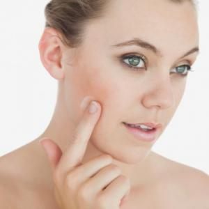 Anti-couperose (rozaceás bőr) ápolás