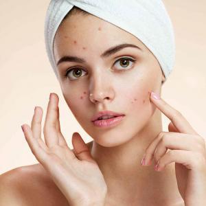 Zsíros, pattanásos bőr ápolása
