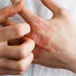 Kézfertőtlenítők, kézápolás ekcémára